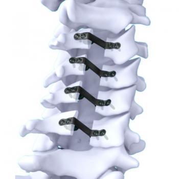 NEULEN颈椎椎板成型系统