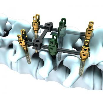 Master7脊柱内固定系统