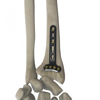 桡骨远端掌侧关节外锁定接骨板(头4孔)