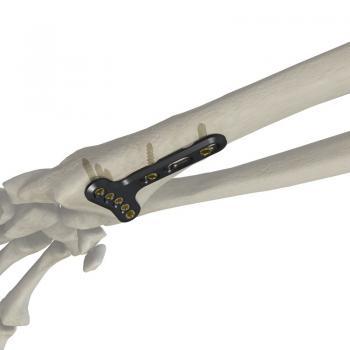 桡骨远端掌侧关节外锁定接骨板(头5孔)