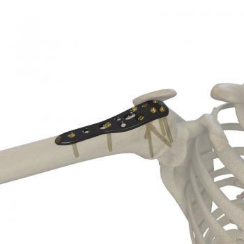 肱骨近端锁定接骨板III型