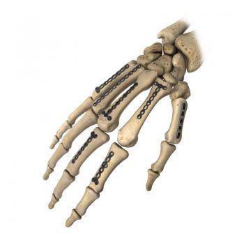 微型锁定接骨板系列