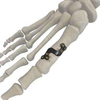 第一跖骨远端截骨钢板