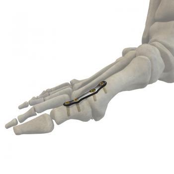 跖趾关节融合板II型