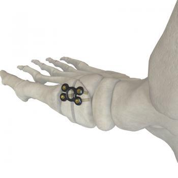 中空形骰骨截骨矫形板