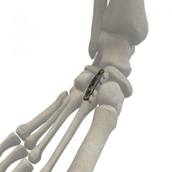 跖楔关节背侧板