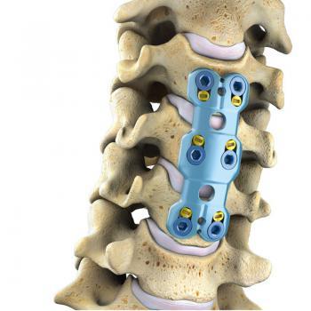 颈椎前路钢板I型