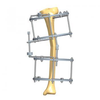环形矫形支架