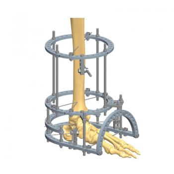 足踝环形支架
