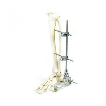 SK组合式外固定支架(下肢系列)